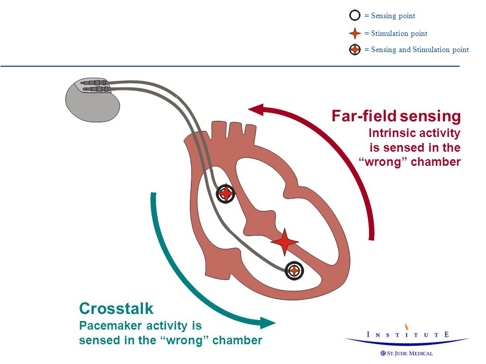 Far-field sensing Crosstalk Intrinsic activity is sensed in the
