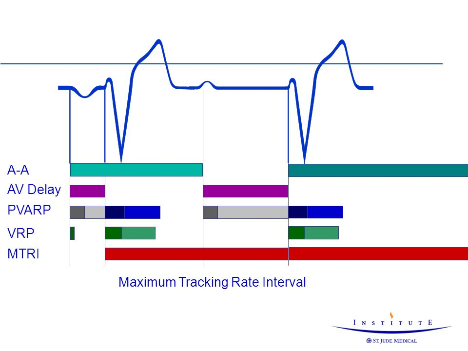 A-A AV Delay PVARP VRP MTRI Maximum Tracking Rate Interval