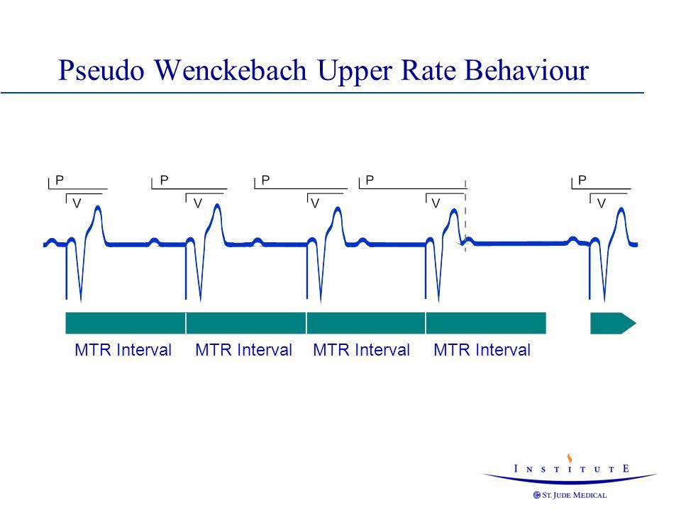 Pseudo Wenckebach Upper Rate Behaviour