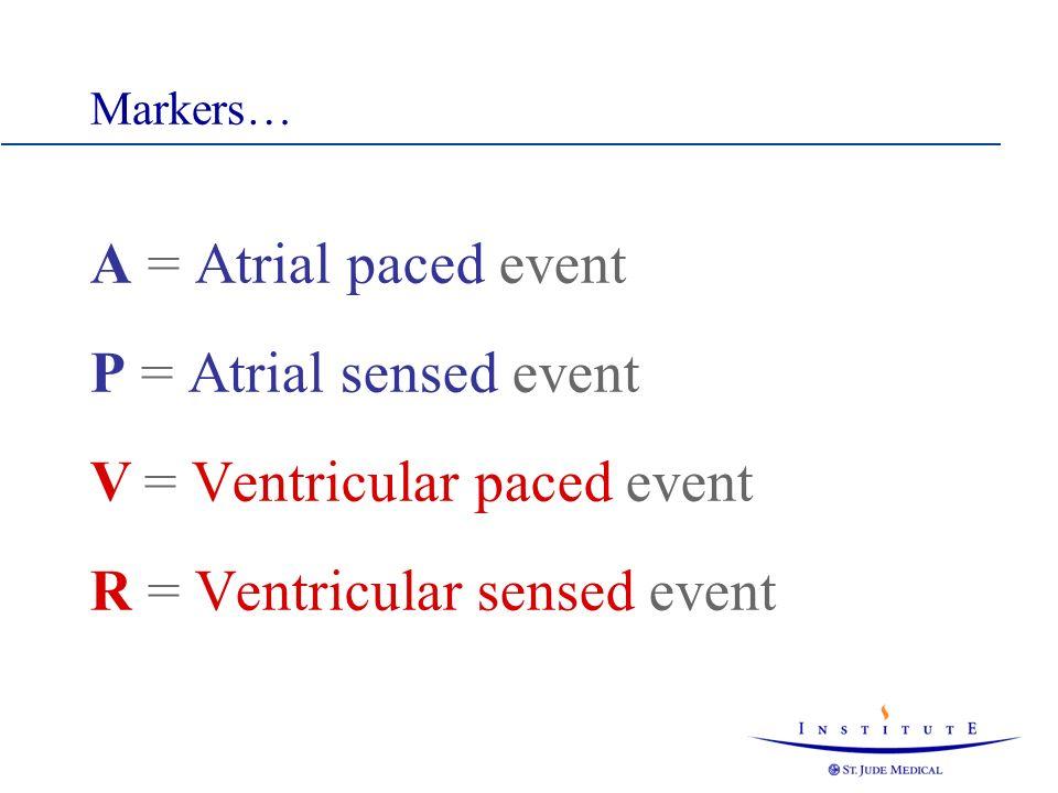 V = Ventricular paced event R = Ventricular sensed event