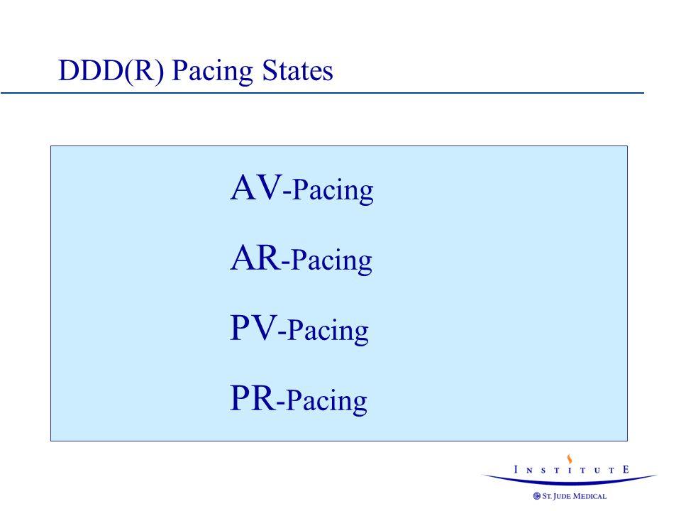 DDD(R) Pacing States AV-Pacing AR-Pacing PV-Pacing PR-Pacing