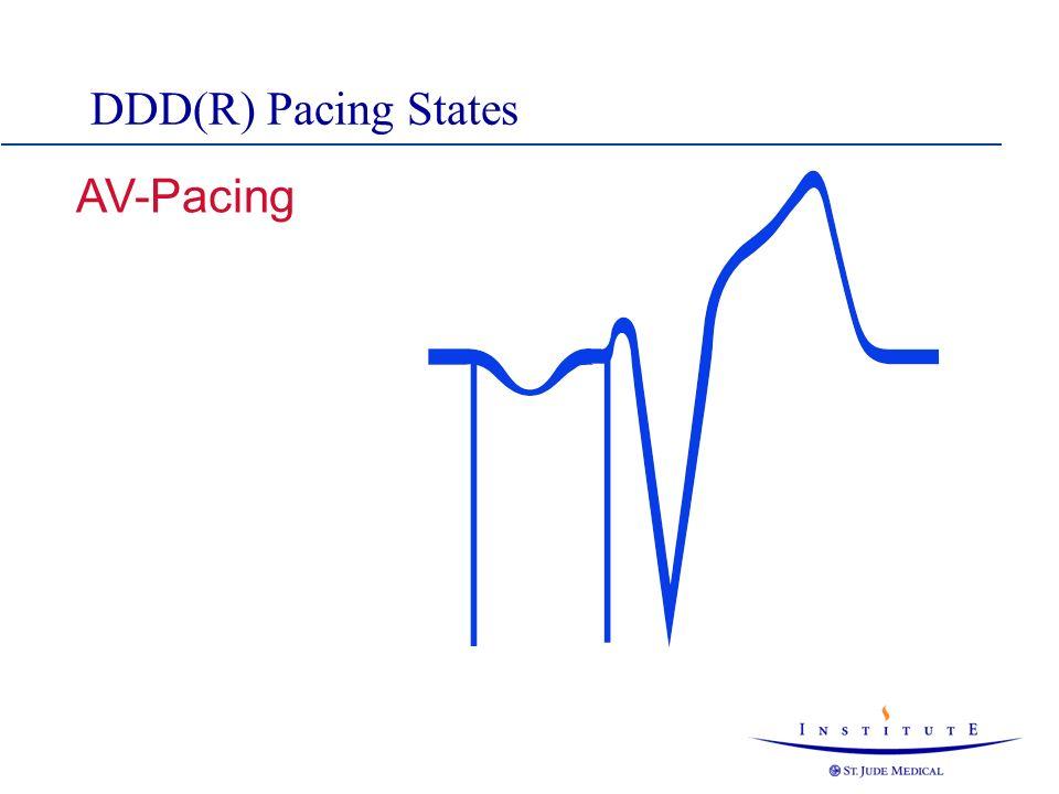 DDD(R) Pacing States AV-Pacing