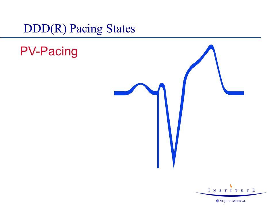DDD(R) Pacing States PV-Pacing