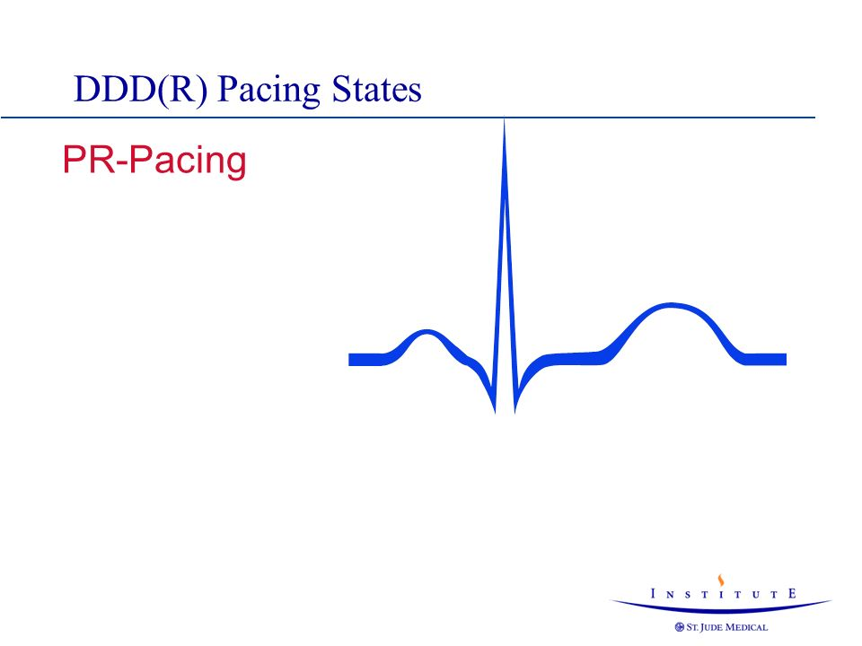 DDD(R) Pacing States PR-Pacing