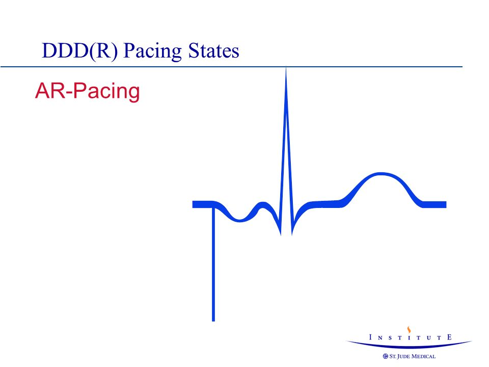 DDD(R) Pacing States AR-Pacing