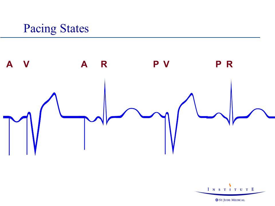 Pacing States A V A R P V P R