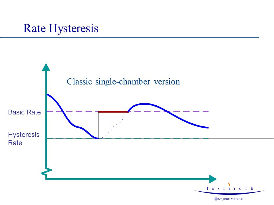 Rate Hysteresis Classic single-chamber version Basic Rate