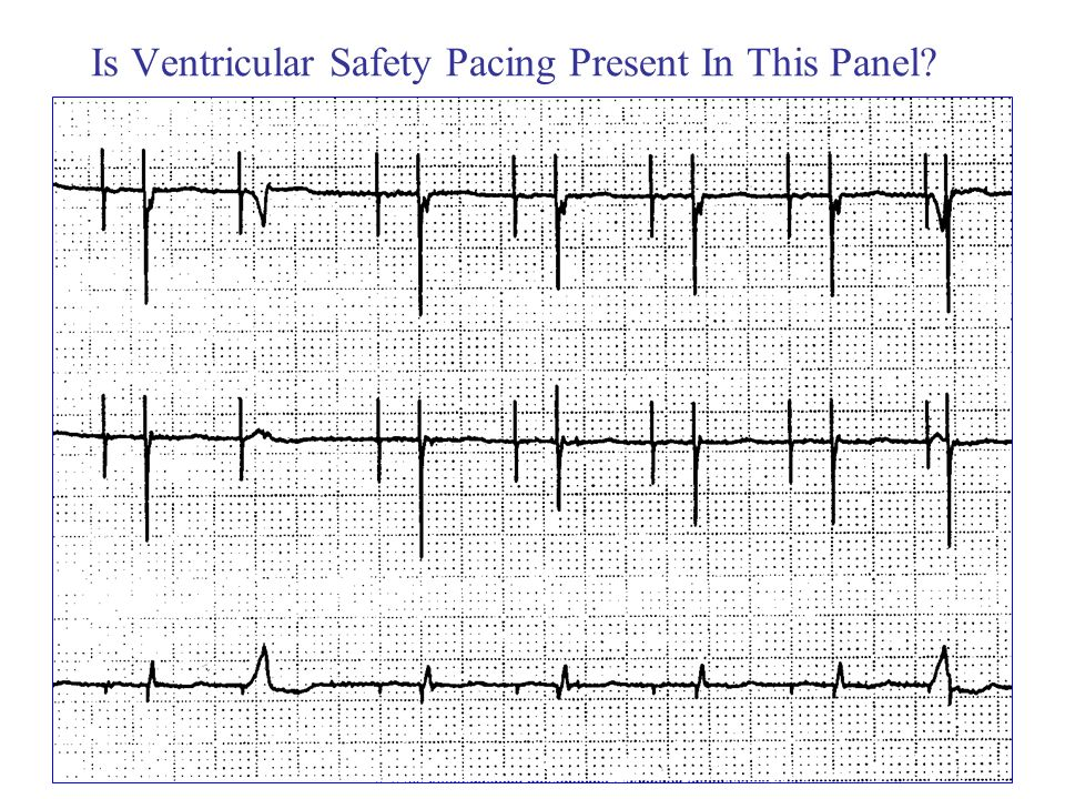 Is Ventricular Safety Pacing Present In This Panel