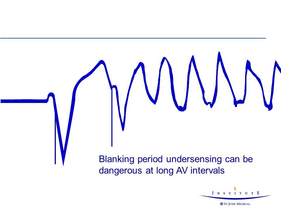 Blanking period undersensing can be dangerous at long AV intervals