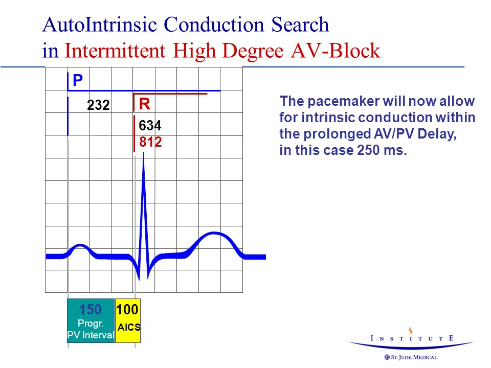 AutoIntrinsic Conduction Search in Intermittent High Degree AV-Block