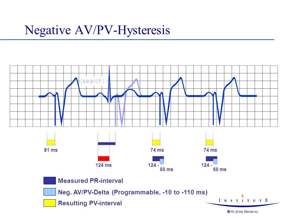 Negative AV/PV-Hysteresis