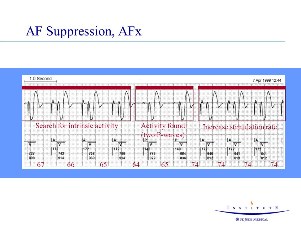 AF Suppression, AFx Search for intrinsic activity 67 66 65