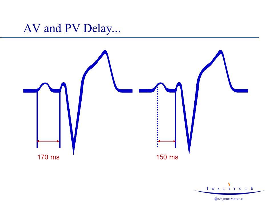 AV and PV Delay...