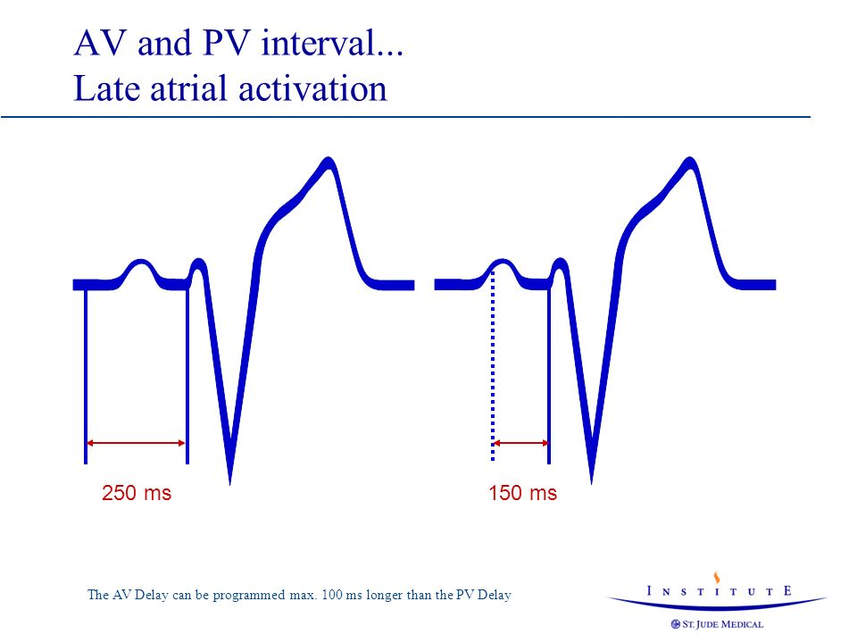 AV and PV interval... Late atrial activation