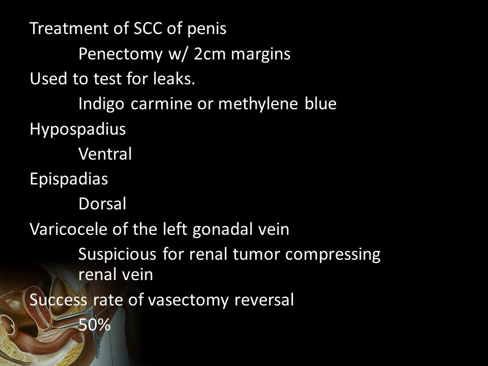 Treatment of SCC of penis