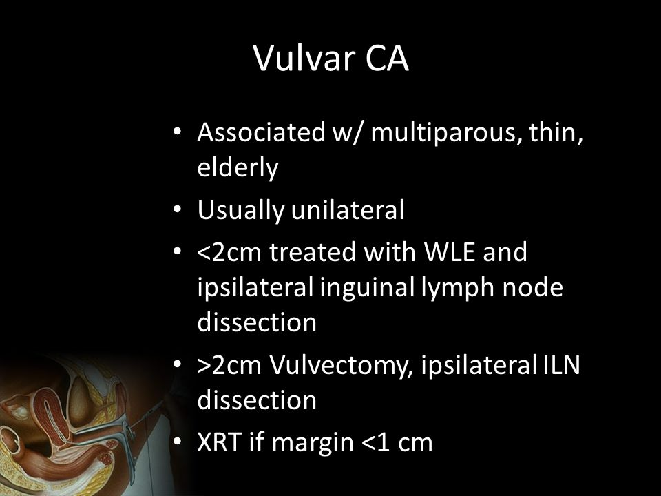 Vulvar CA Associated w/ multiparous, thin, elderly Usually unilateral