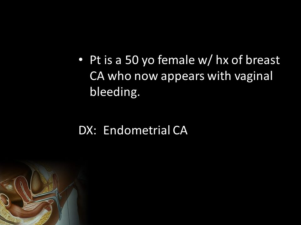 Pt is a 50 yo female w/ hx of breast CA who now appears with vaginal bleeding.