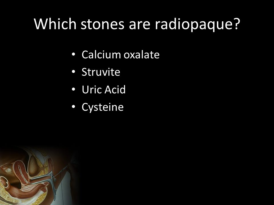 Which stones are radiopaque