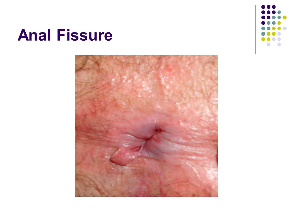 Small anal fissure