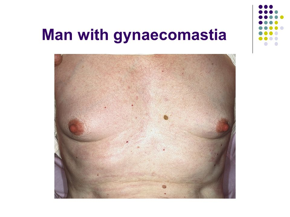 Man with gynaecomastia