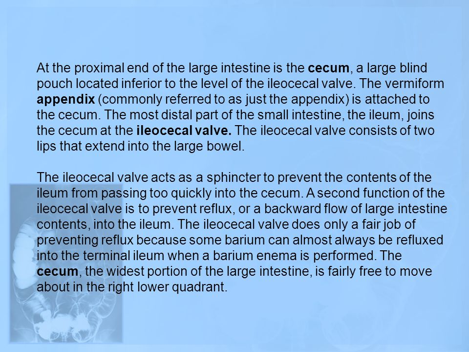 At the proximal end of the large intestine is the cecum, a large blind pouch located inferior to the level of the ileocecal valve. The vermiform appendix (commonly referred to as just the appendix) is attached to the cecum. The most distal part of the small intestine, the ileum, joins the cecum at the ileocecal valve. The ileocecal valve consists of two lips that extend into the large bowel.