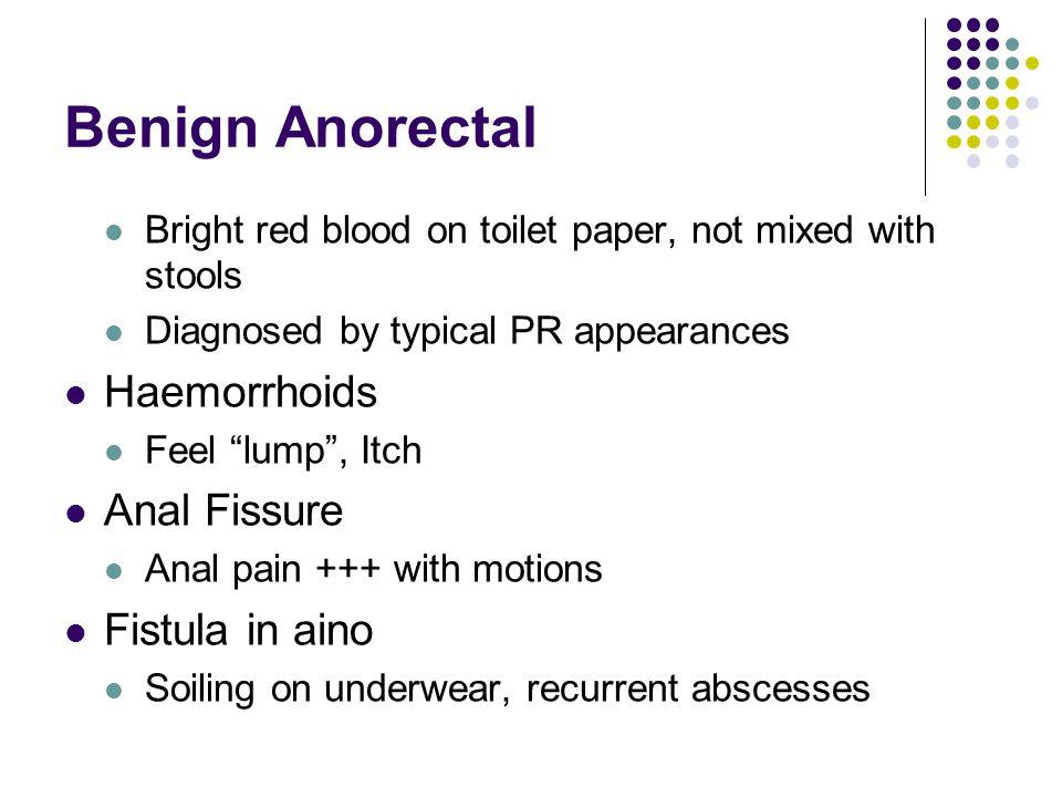 Benign Anorectal Haemorrhoids Anal Fissure Fistula in aino