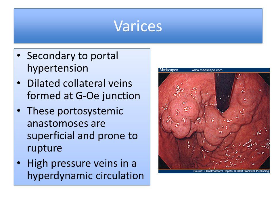 Varices Secondary to portal hypertension