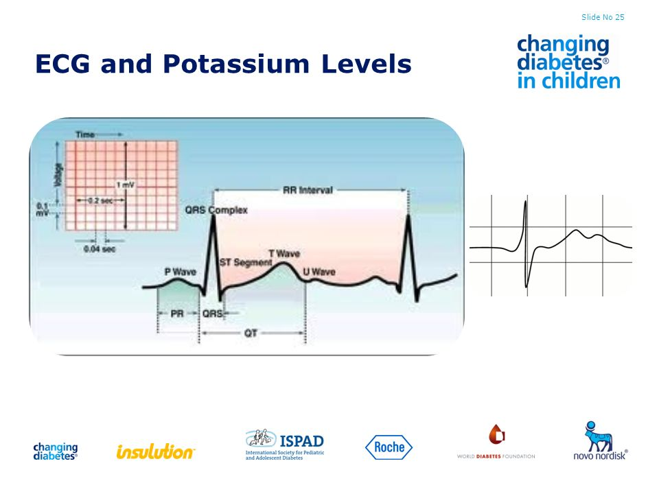 ECG and Potassium Levels