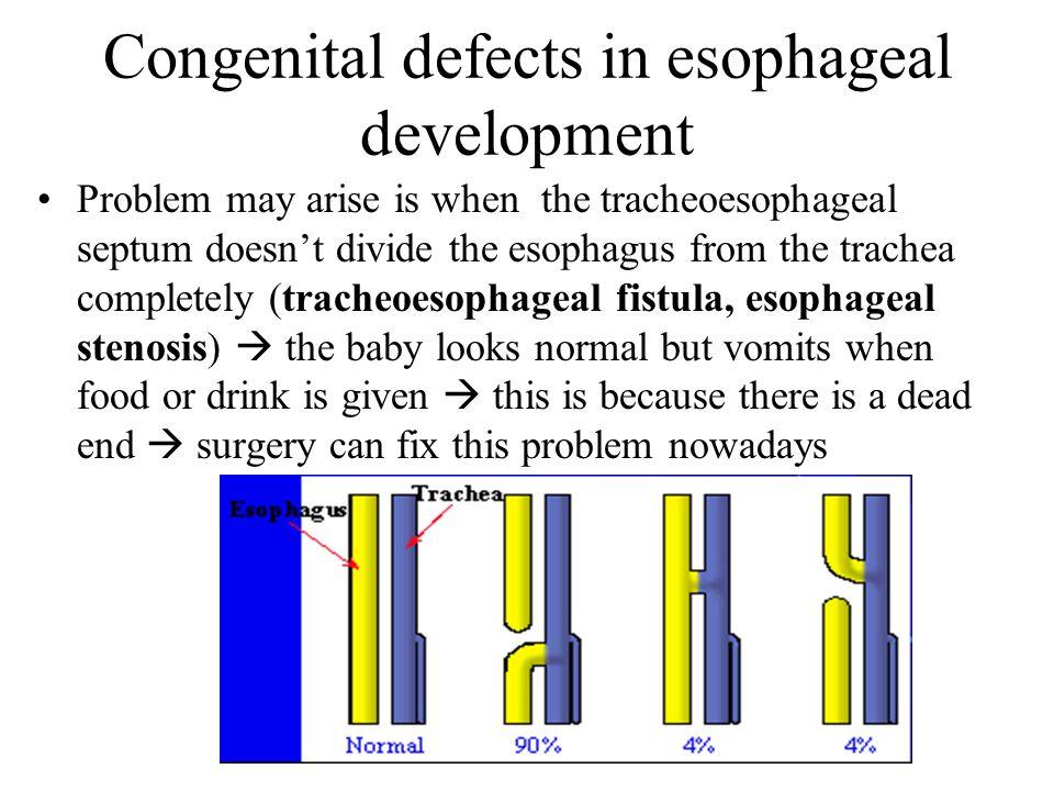 Congenital defects in esophageal development