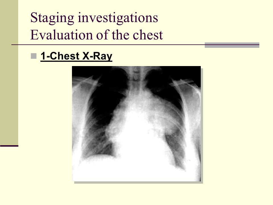 Staging investigations Evaluation of the chest