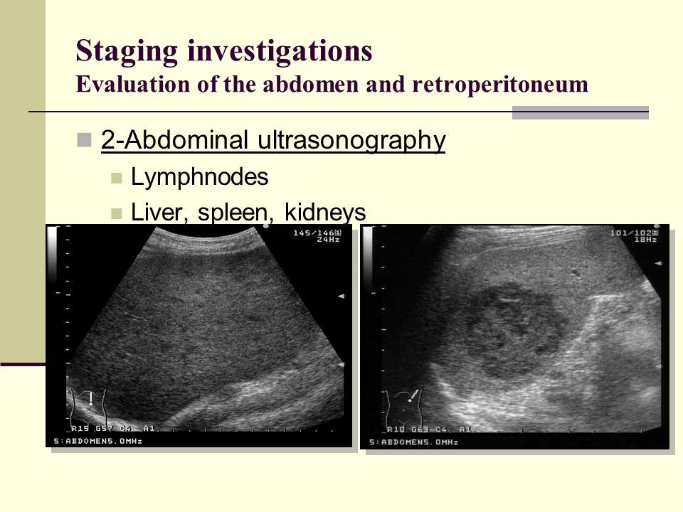 Staging investigations Evaluation of the abdomen and retroperitoneum