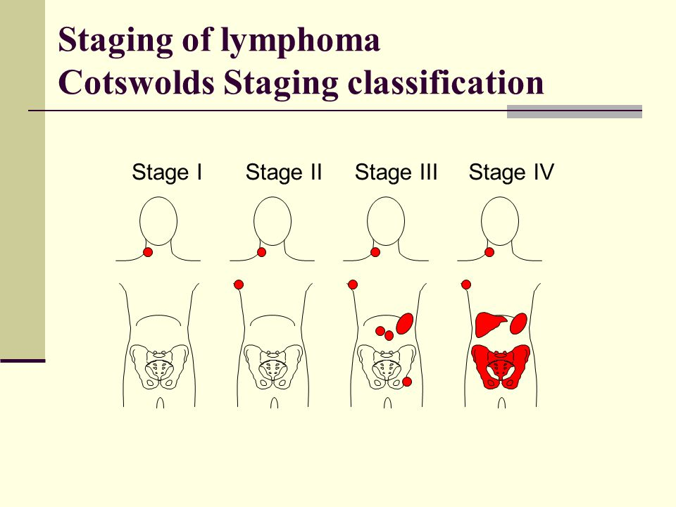 Staging of lymphoma Cotswolds Staging classification