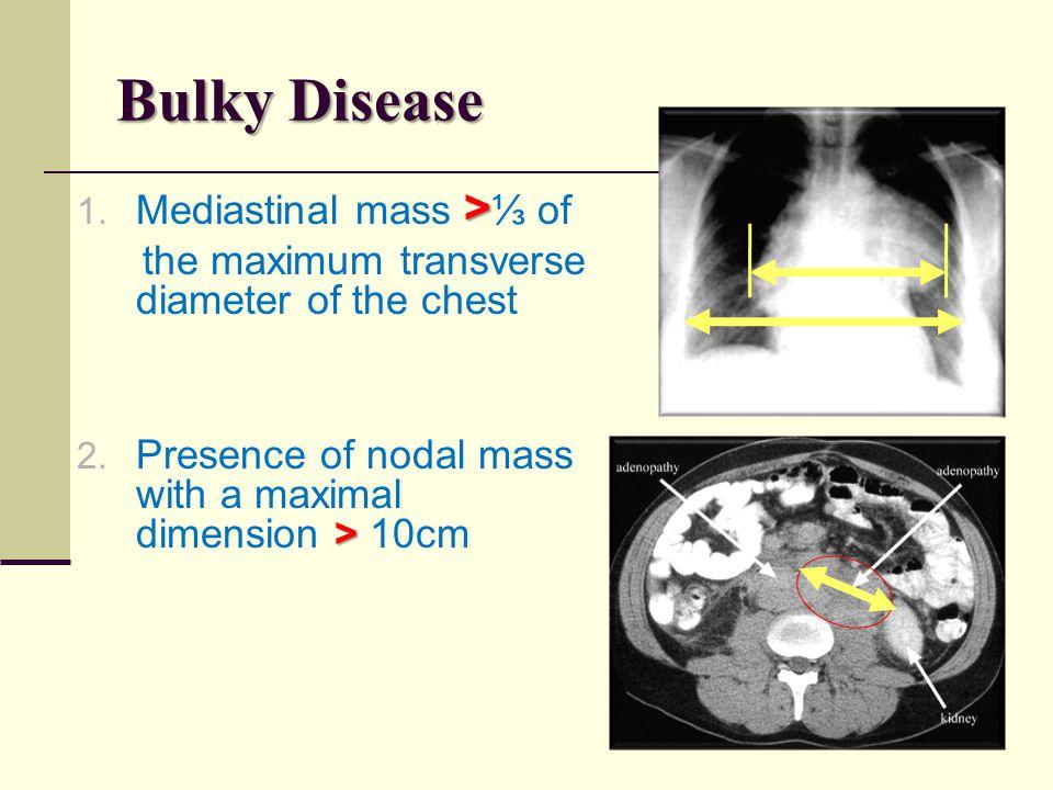 Bulky Disease Mediastinal mass >⅓ of