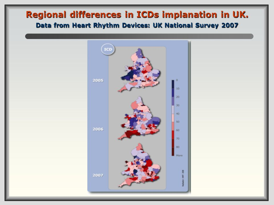 Regional differences in ICDs implanation in UK