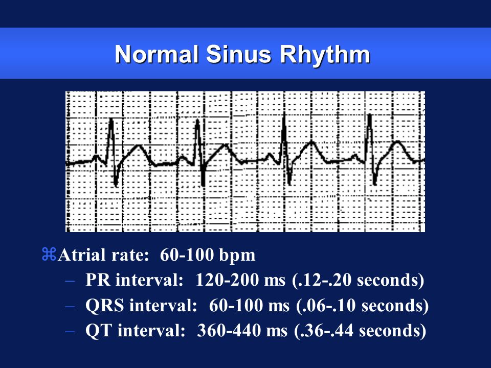 Normal Sinus Rhythm Atrial rate: 60-100 bpm