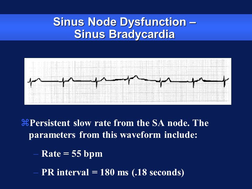 Sinus Node Dysfunction – Sinus Bradycardia