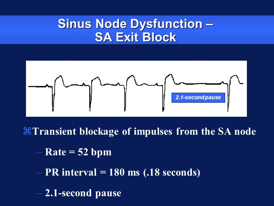 Sinus Node Dysfunction – SA Exit Block