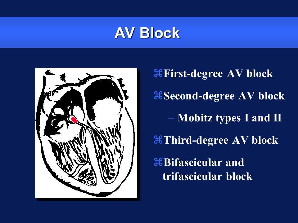 AV Block First-degree AV block Second-degree AV block