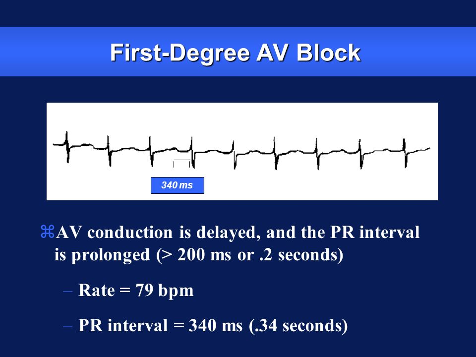 First-Degree AV Block 340 ms. AV conduction is delayed, and the PR interval is prolonged (> 200 ms or .2 seconds)