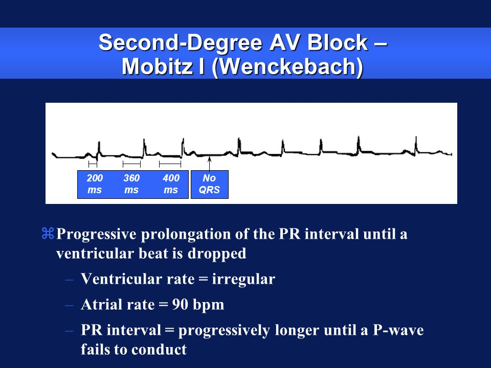 Second-Degree AV Block – Mobitz I (Wenckebach)