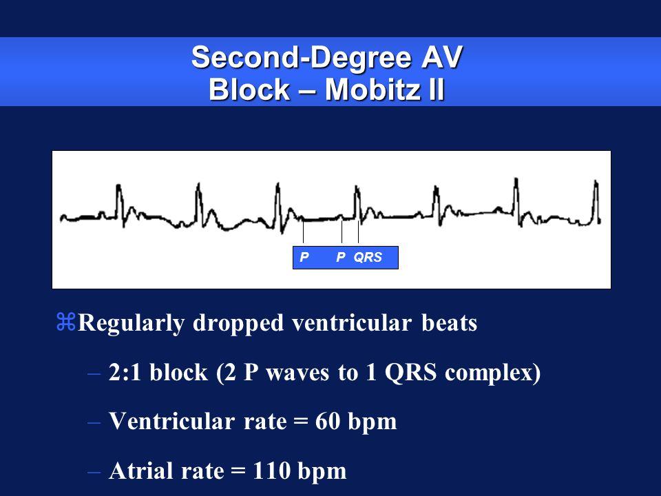 Second-Degree AV Block – Mobitz II