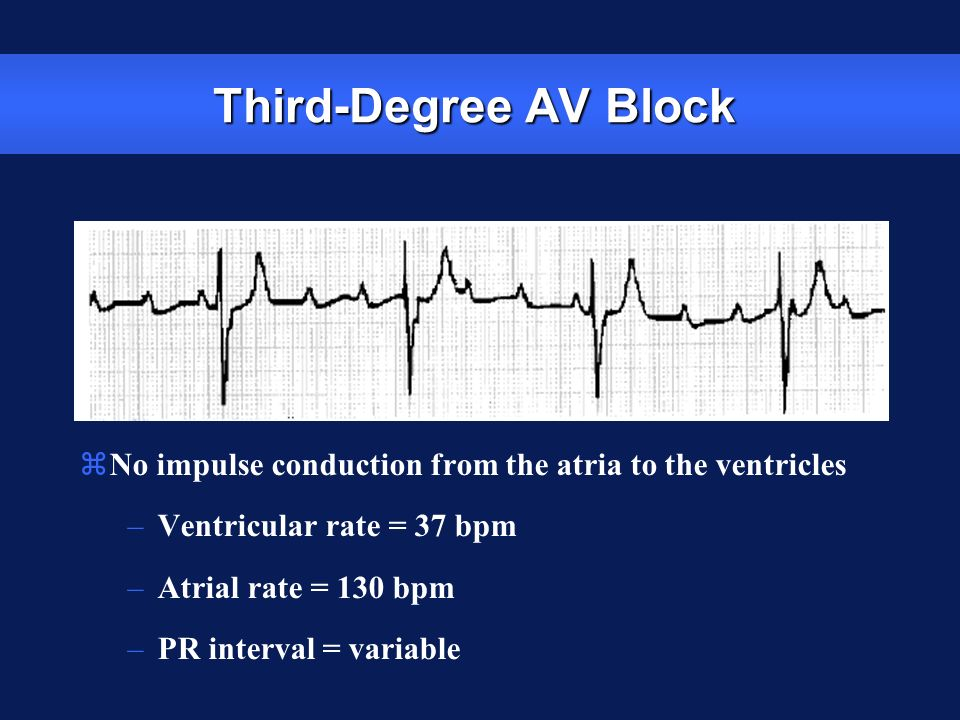 Third-Degree AV Block No impulse conduction from the atria to the ventricles. Ventricular rate = 37 bpm.
