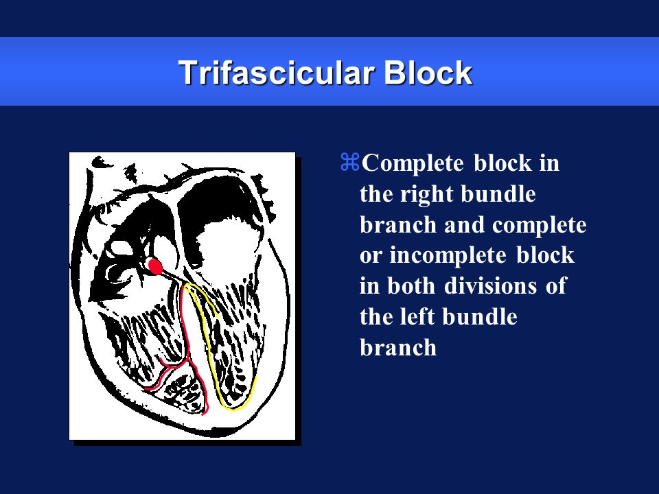 Trifascicular Block Complete block in the right bundle branch and complete or incomplete block in both divisions of the left bundle branch.