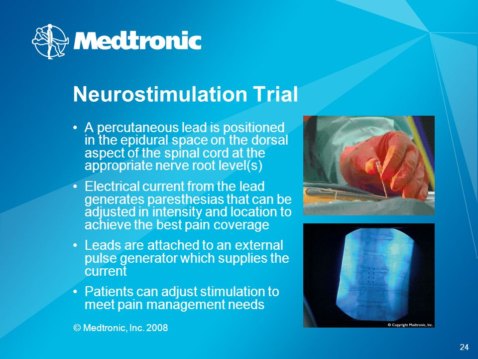Neurostimulation Trial