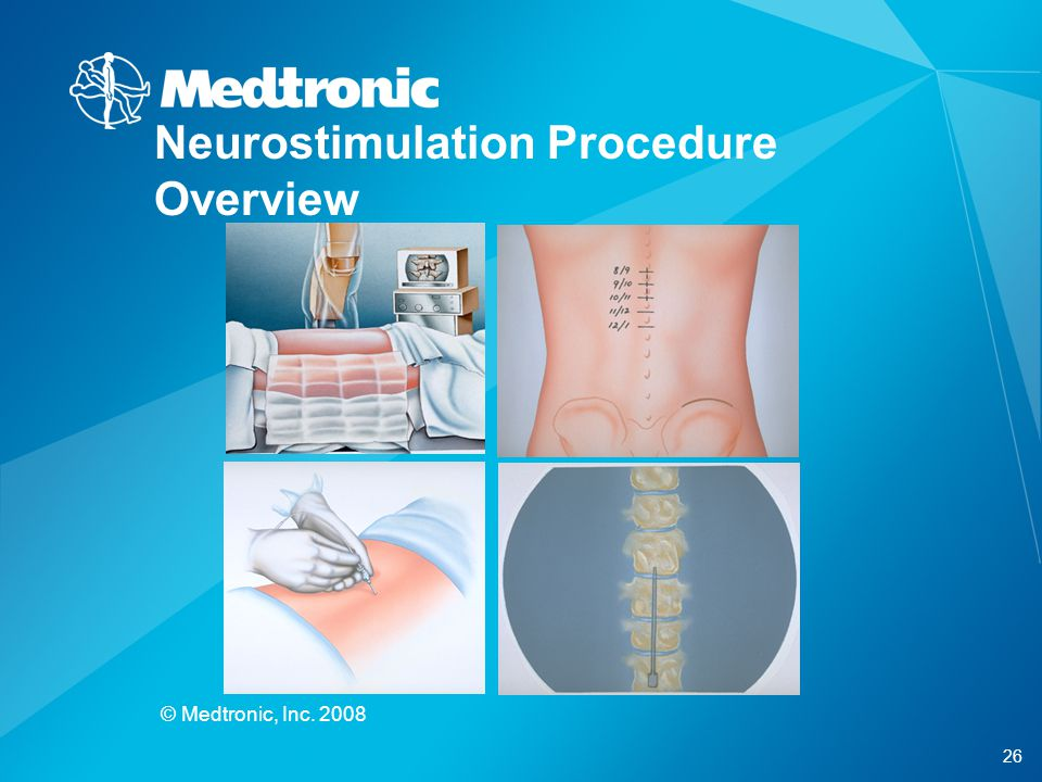 Neurostimulation Procedure Overview