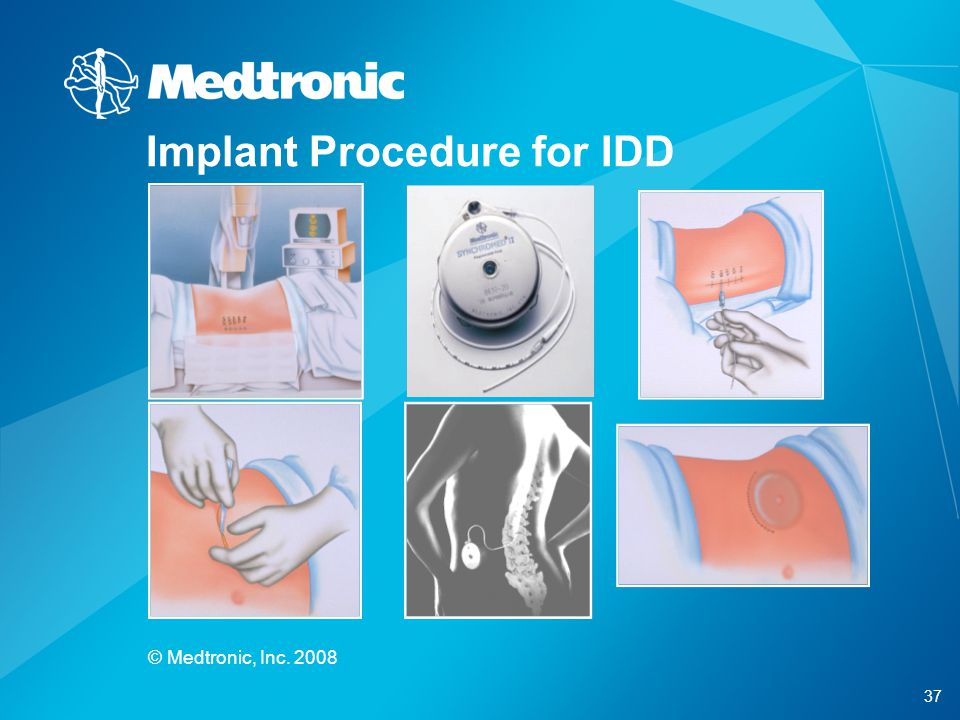 Implant Procedure for IDD