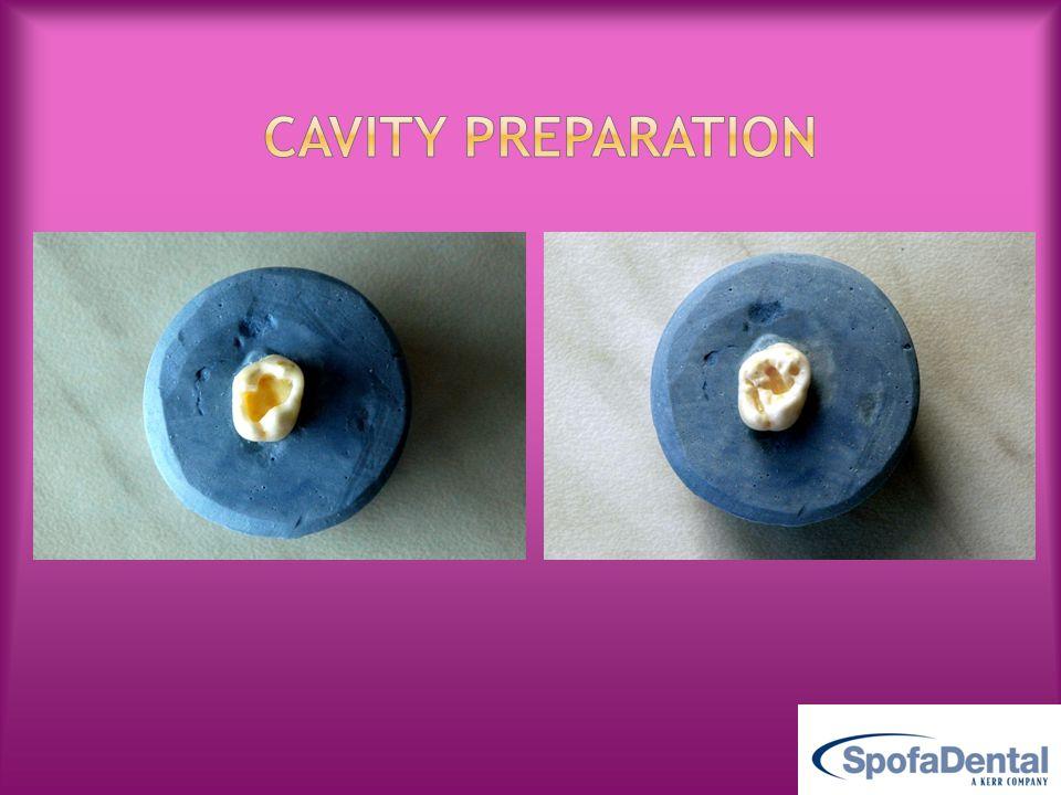 Cavity preparation