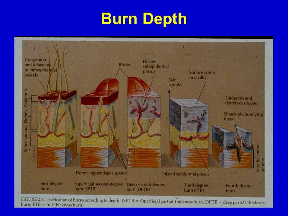 Burn Depth