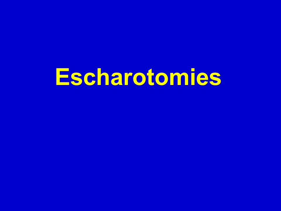 Escharotomies