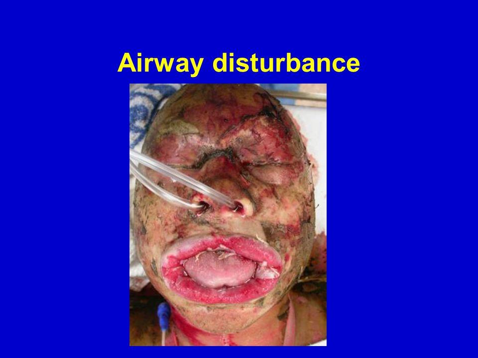 Airway disturbance